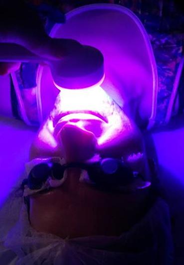 Tratamentos com Laser e LED
